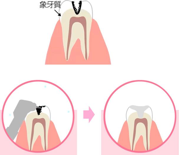 中等度のむし歯の治療イメージ