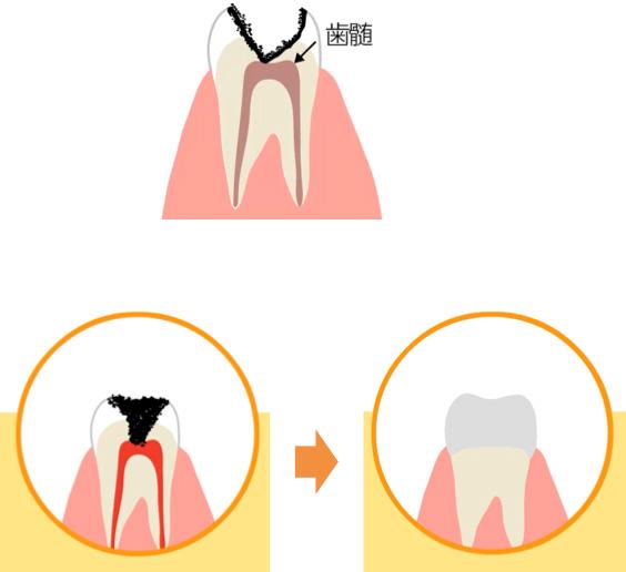 神経に達しているむし歯の治療イメージ