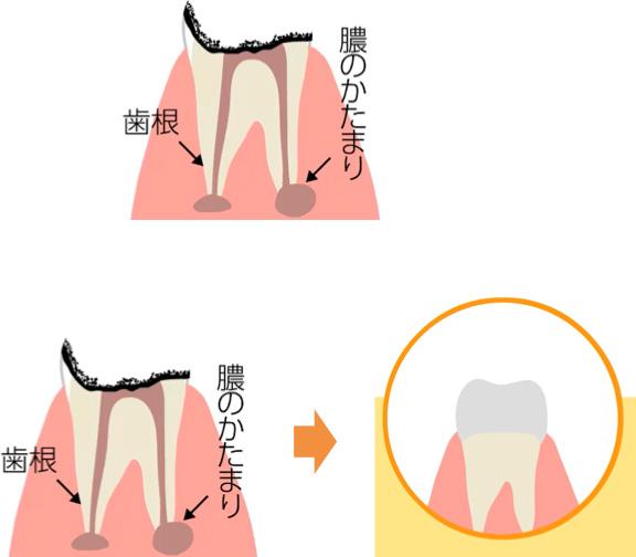 歯の根の部分にまで進行しているむし歯の治療イメージ
