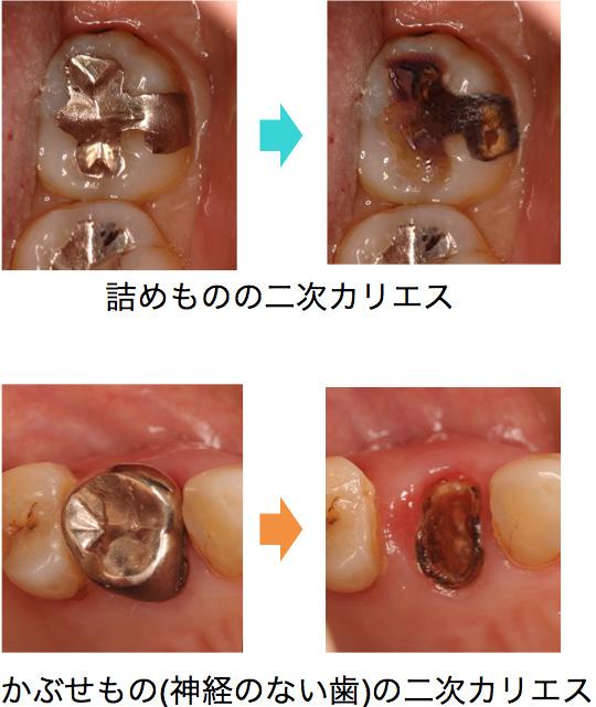 初期のむし歯の治療イメージ